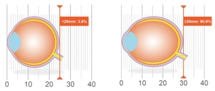 Association of axial length with risk of uncorrectable visual impairment