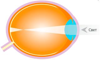 Myopic Eye